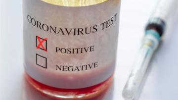 coronavírus coviv covid-19 teste exame positivo
